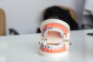 A Quick Look at Full Dentures